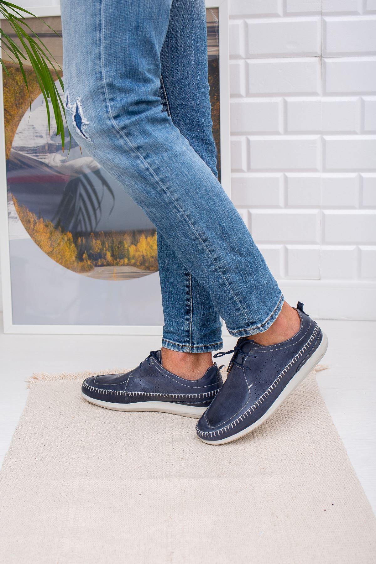 Ortopedik Pedli Deri Ayakkabı