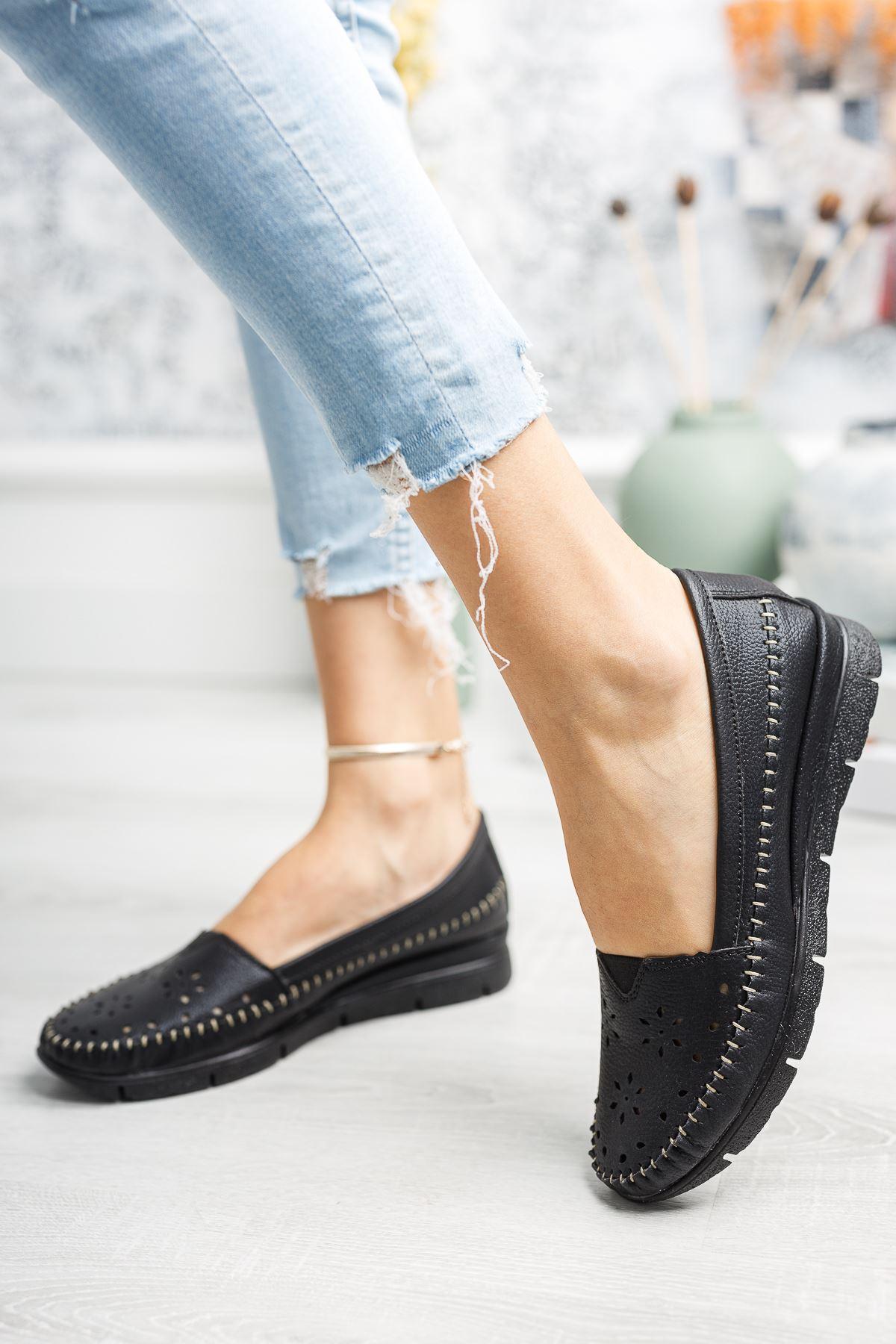 Ortapedik Pedli Siyah Cilt Ayakkabı