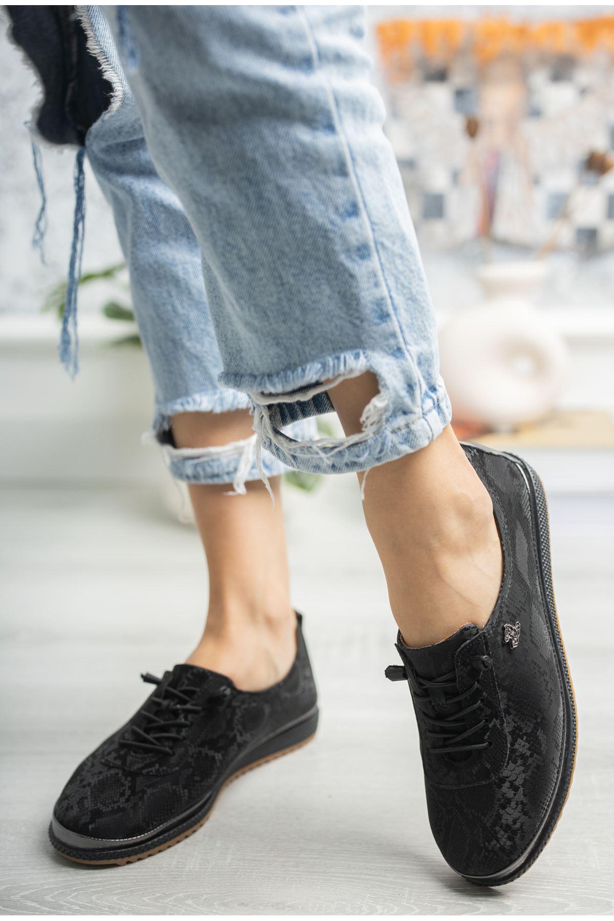 Ortopedik Taban Lastik Bağcıklı İçi Deri Siyah Ayakkabı